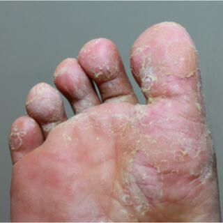 قدم الرياضي Athlete's Foot