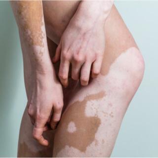 البهاق المعمم Generalized Vitiligo