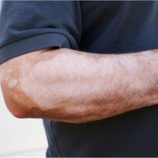 البهاق القطعي Segmental vitiligo