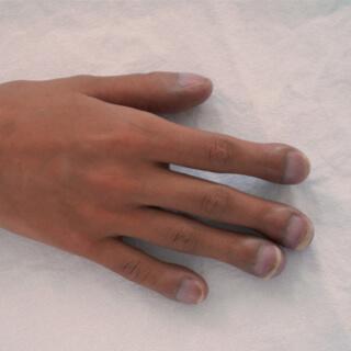 سماكة جلد الأظافر