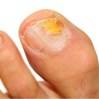 أعراض فطريات أظافر القدم