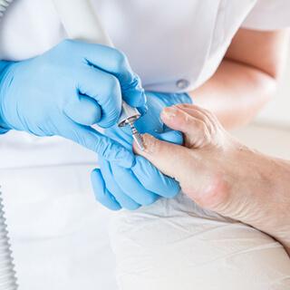 علاج فطريات أظافر القدم