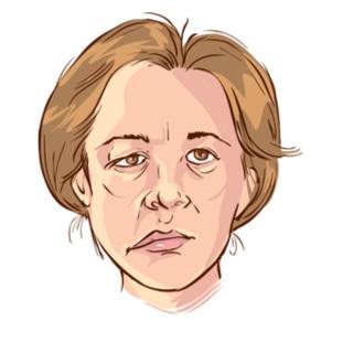 أعراض اضطرابات عصب الوجه
