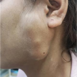 أسباب اضطرابات عصب الوجه
