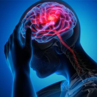 انخفاض فرصة الإصابة بالسكتة الدماغية