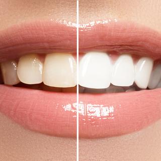 علاجات منزلية أخرى لتبيض الأسنان