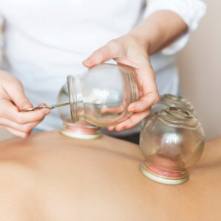 cupping and its benefits