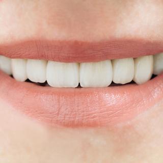 أهمية تركيب الأسنان الاصطناعية