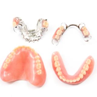 أنواع تركيب الأسنان الاصطناعية