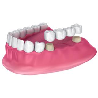 2. جسور الأسنان الثابتة