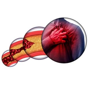 أعراض تصلب شرايين القلب.