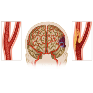 أعراض تصلب شرايين الدماغ.