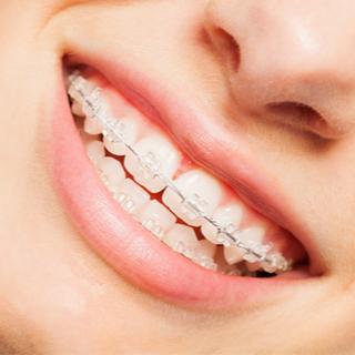 تقويم الأسنان الخزفي