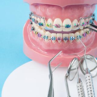 أنواع تقويم الأسنان بالصور