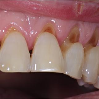 التهاب دواعم الأسنان