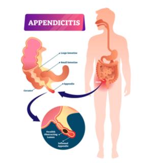أسباب التهاب الزائدة الدودية