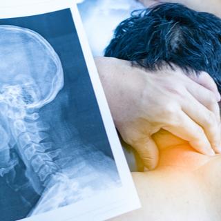 علاج الآلام الرقبة الناتجة عن الإنزلاق الغضروفي