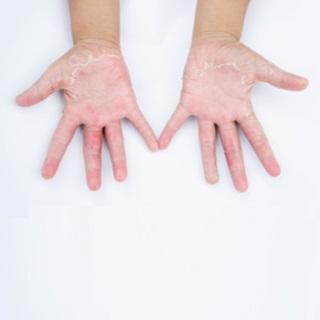 التهاب الجلد التماسي (Contact dermatitis)