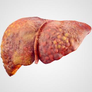 المرحلة الثانية من تليف الكبد