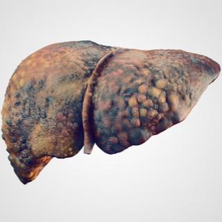 المرحلة الثالثة من تليف الكبد