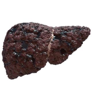 المرحلة الرابعة من تليف الكبد