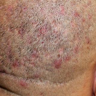 مخاطر عملية زراعة الشعر