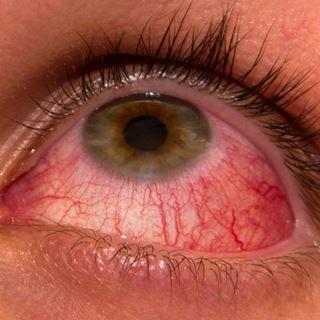 الالم المفاجئ في العينين، الاحمرار، الغثيان والقيء.