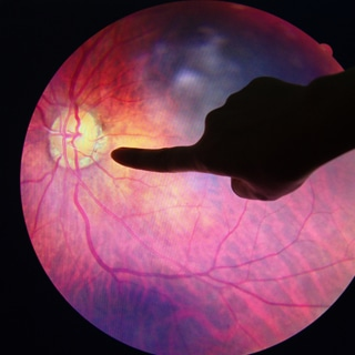 بقع او نقاط في العين وعدم وضوح الرؤية الغير مبرر لدى مرضى السكري