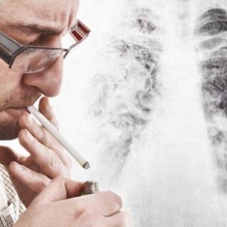 اسباب سرطان الرئة