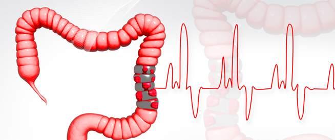 نصائح لمرضى التهاب الأمعاء في رمضان!