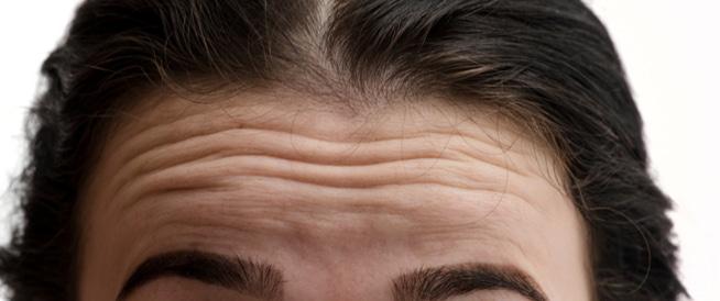 علاج تجاعيد الوجه: إليكم أفضل الطرق