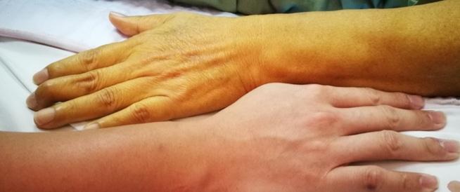 التجاعيد ومتاعب الشيخوخة: مشاكل وحلول