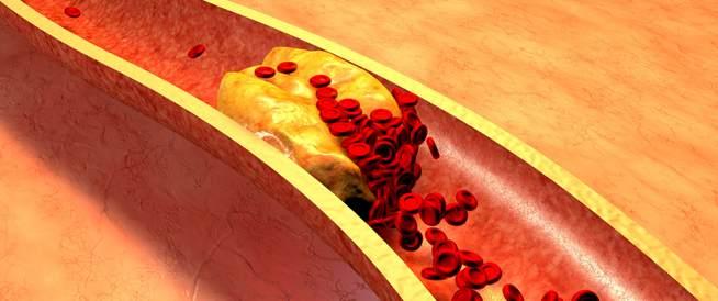 احذروا ارتفاع نسبة الكولسترول في الدم