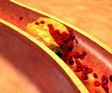 الكولسترول في الدم: