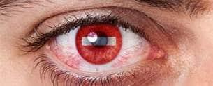 في عينكم جسم غريب؟!