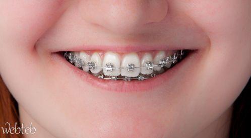 مقوم الأسنان -  للضرورات الصحية والجمالية