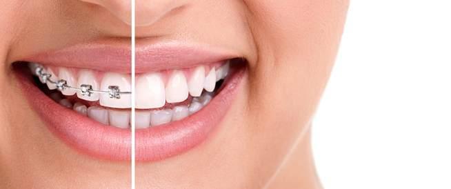 مقوم الأسنان- للمراهقين والكبار