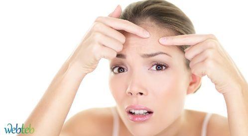 علاج حبوب الوجه: نصائح للمصابين والأصحاء!
