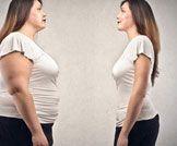 علاج ترهلات البطن: للتنحيف أم لصقل الجسم؟