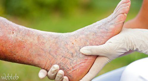 أوردة الساقين - لماذا تتكون وكيف يتم علاج الدوالي؟