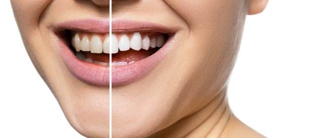 وصفات لتبييض الأسنان