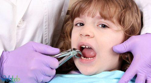 """خلع الأسنان: نصائح لما  """"قبل وبعد"""" خلع السن"""