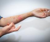 علاج الحروق الفوري يقلل الأضرار!