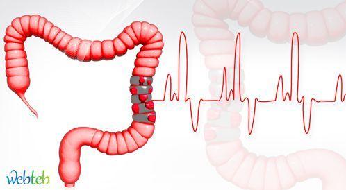 سرطان القولون: شهر توعية في الدول الغربية وأرقام كارثية عربيا