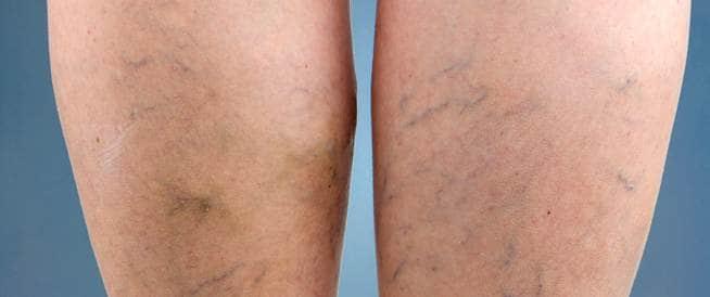 علاج دوالي الساقين للحصول على أقدام ناعمة!