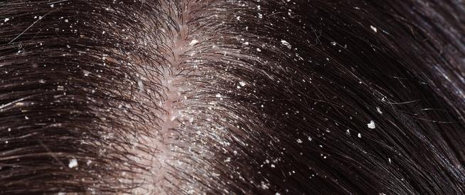 علاج  قشرة الشعر - كيف ومتى؟
