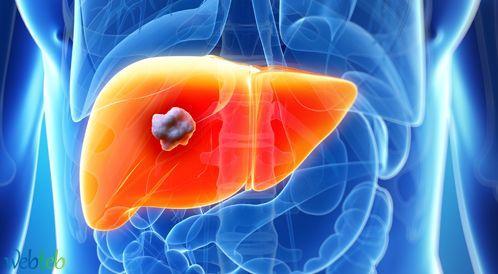 علاج  تليف الكبد وكيف يتم ذلك؟