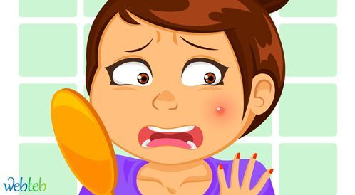 دواء حب الشباب: العلاج وما الذي يجب تجنبه؟