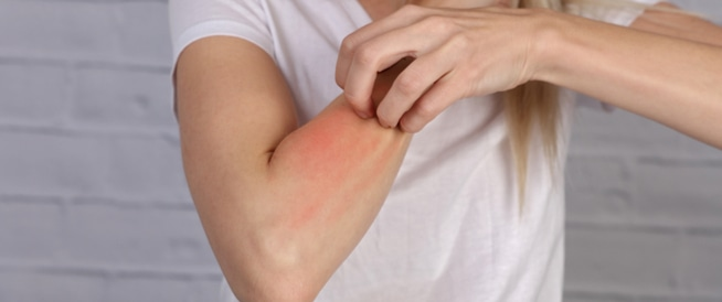 57d11dd10 علاج حساسية الجلد كيف يتم وما هي تداعياته - ويب طب