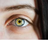 ذبابة العين الطائرة (عوامات العين)